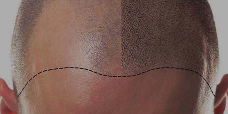 Scalp Micropigmentation Surgery